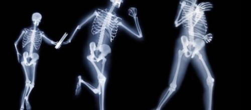 El ejercicio con impacto y sus beneficios para los huesos